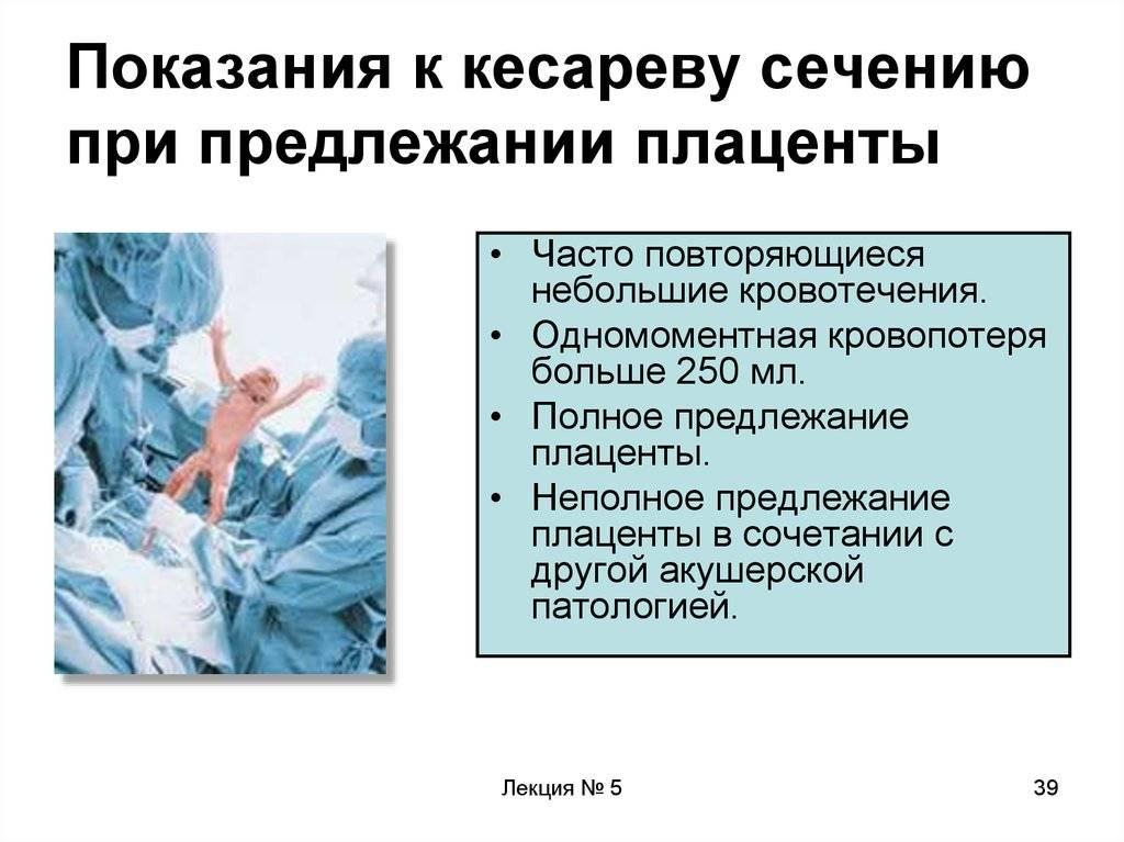 Глава 30. акушерские операции