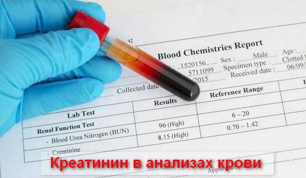 Общий анализ крови – подготовка, как сдавать кровь, можно ли есть перед сдачей крови, показатели, таблицы норм у детей и взрослых, расшифровка, цена анализа