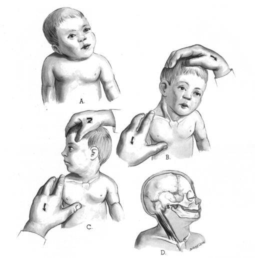 Кривошея: симптомы, диагностика, лечение