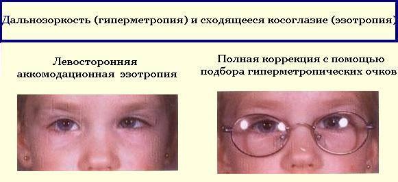 Косоглазие у новорожденных - когда проходит, до какого возраста это норма