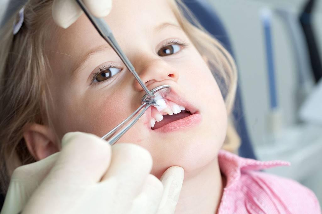Лечение пульпита молочных зубов: этапы, методы, фото. особенности лечения пульпита у детей