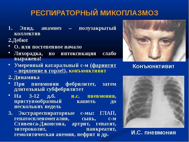 Крупозная пневмония у детей - симптомы болезни, профилактика и лечение крупозной пневмонии у детей, причины заболевания и его диагностика на eurolab