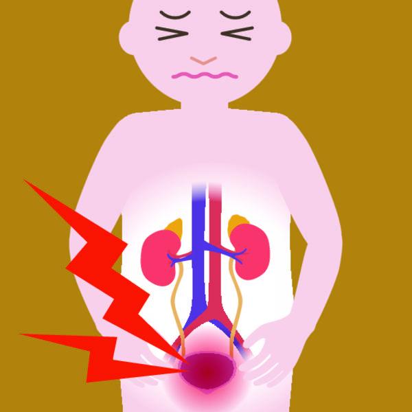 Урологические расстройства -