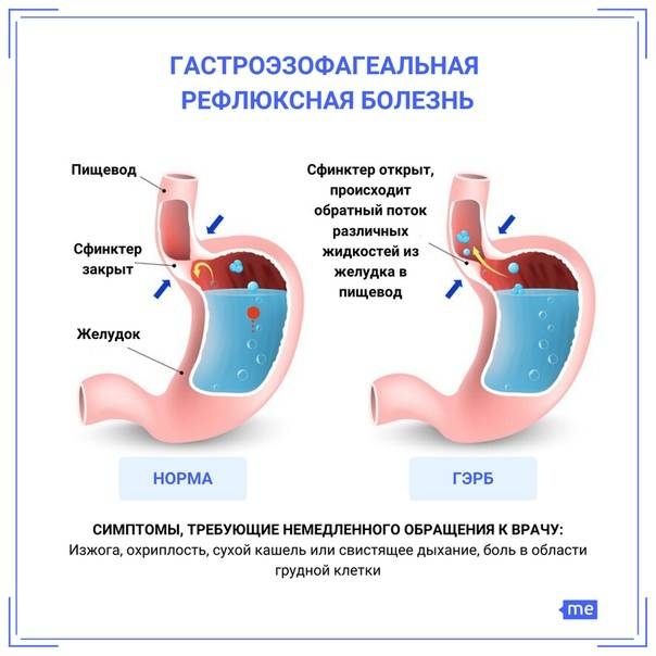 Причины гэрб. рефлюкс: симптомы, лечение