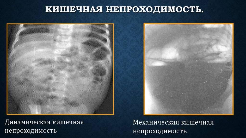 Стома: что такое стома кишечника, виды стом, жизнь со стомой, операция, осложнения