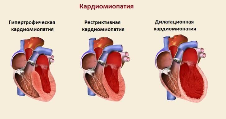 Кардиология детского возраста