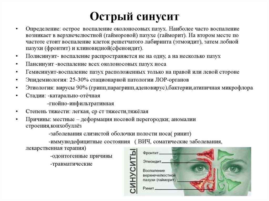Острый синусит у детей | компетентно о здоровье на ilive