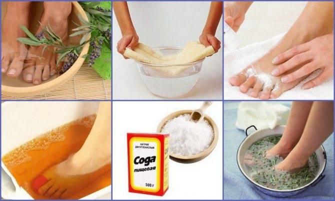 Как избавиться от неприятного запаха ног народными средствами