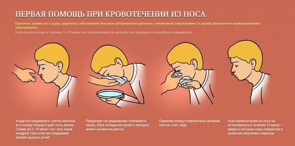 Кровотечение после лечения антикоагулянтами
