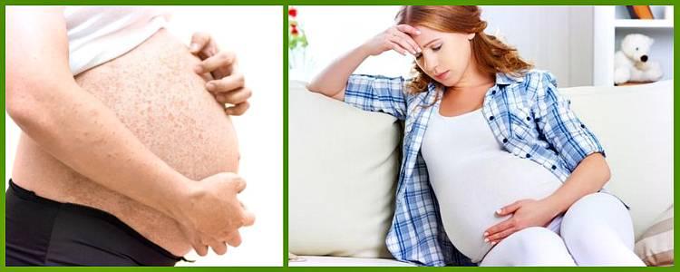 Аллергия у беременных