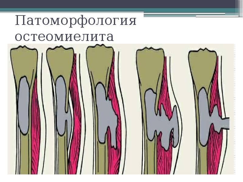 Остеомиелит позвоночника - лечение, симптомы, причины, диагностика   центр дикуля