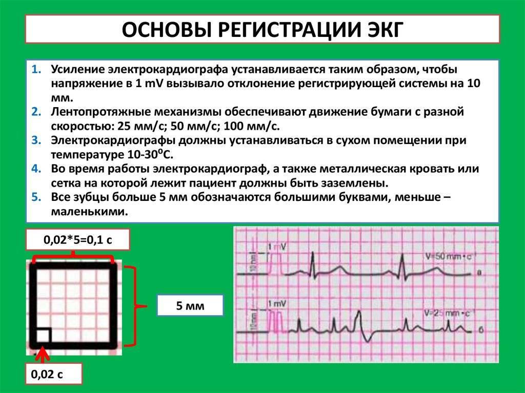 Диагностика стенокардии: экг, велоэргометрия, стресс-тест, эхокг, мскт, суточное мониторирование, допплеровское исследование - сибирский медицинский портал