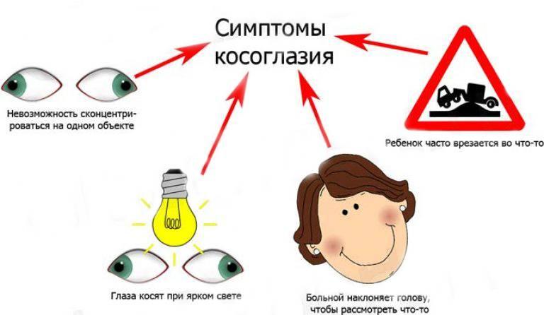 Детское косоглазие: методы лечения