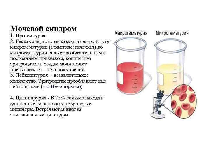 Кровь в моче: причины, диагностика, лечение