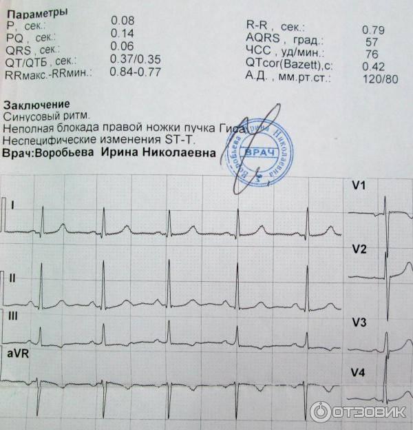 Функциональная диагностика сердечно-сосудистой системы в амбулаторной практике