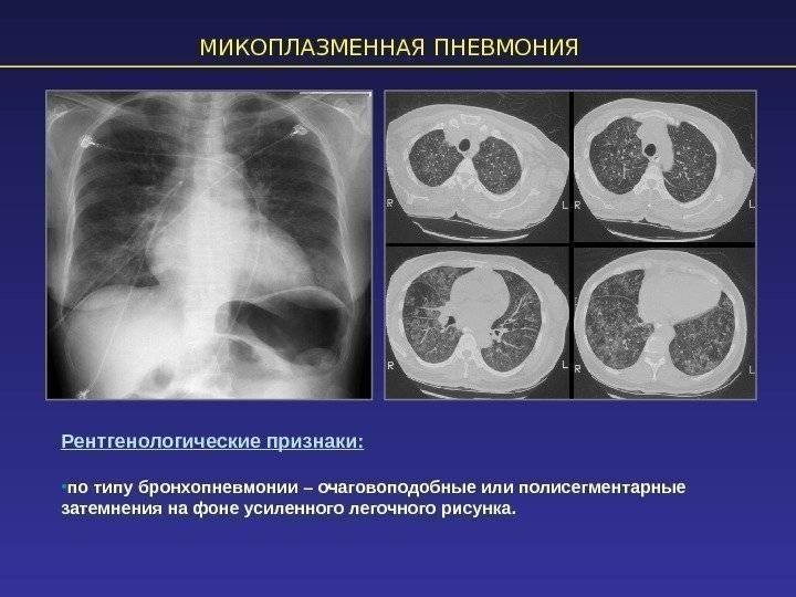 Респираторная микоплазменная инфекция у детей - симптомы болезни, профилактика и лечение респираторной микоплазменной инфекции у детей, причины заболевания и его диагностика на eurolab