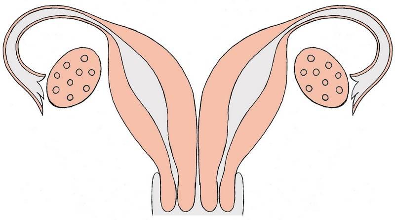 Гинекологическое узи (узи органов малого таза у женщин)