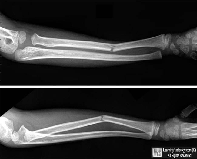 Перелом лучевой кости руки в типичном месте, со смещением | перелом луча, восстановление после