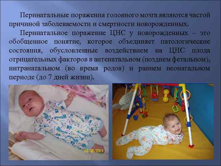 Церебральная ишемия у новорожденных | eurolab | педиатрия