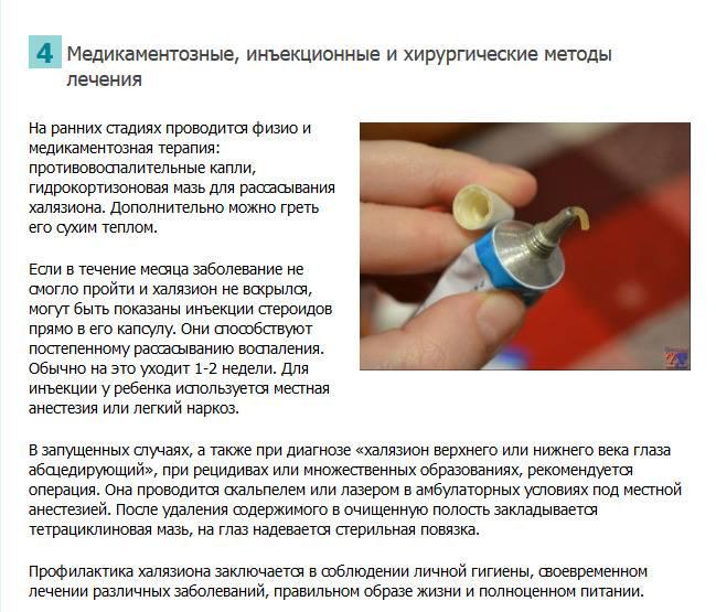 Ячмень у ребенка - медицинский портал eurolab