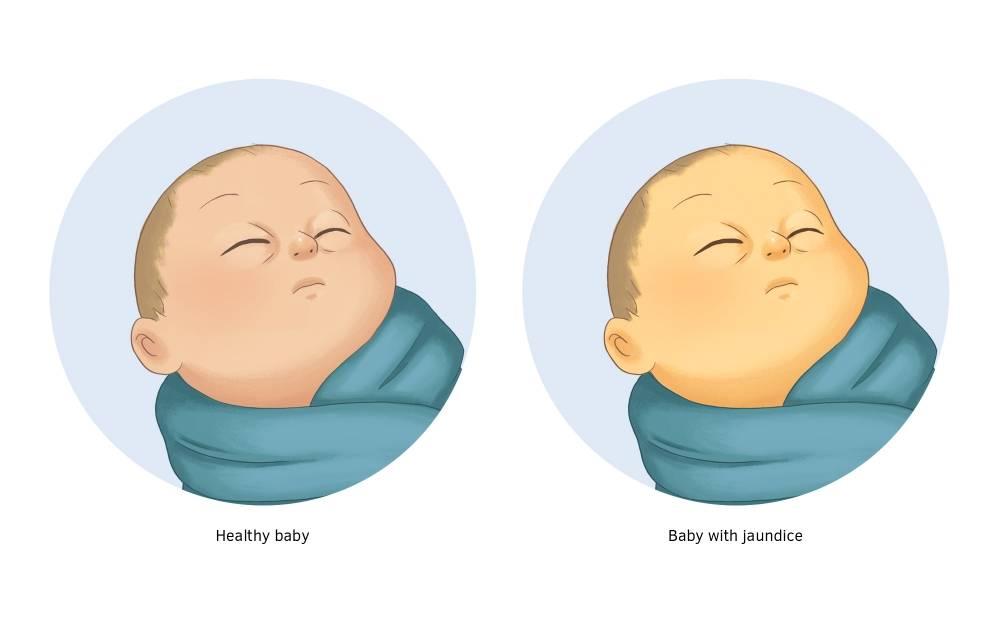 Желтуха у новорожденных: причины, симптомы, лечение