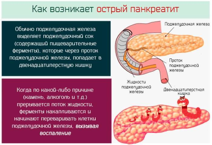 Панкреатит у детей: симптомы и лечение лекарствами, диетой и народными средствами