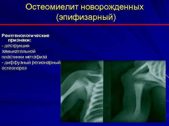 Инфекции кожи, мягких тканей, костей и суставов
