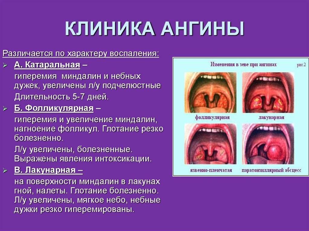 Тонзиллит у детей: клиника, симптомы лекарства и лечение тонзиллита у ребенка