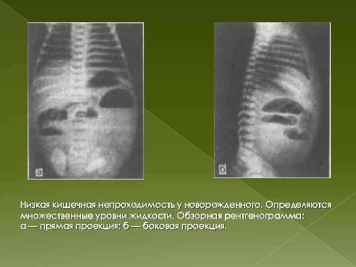 Непроходимость кишечника: симптомы и лечение кишечной непроходимости в одессе   медицинский дом odrex