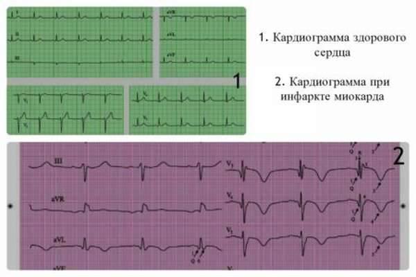 Функциональная диагностика сердечно-сосудистой системы
