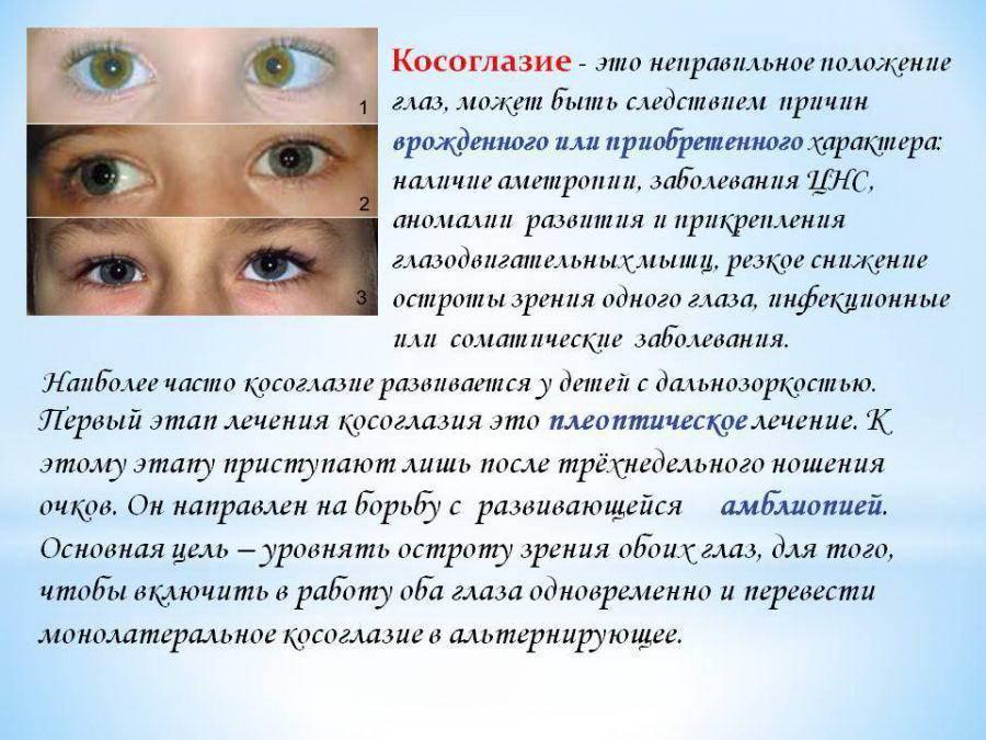 Вертикальное косоглазие: причины и лечение - энциклопедия ochkov.net