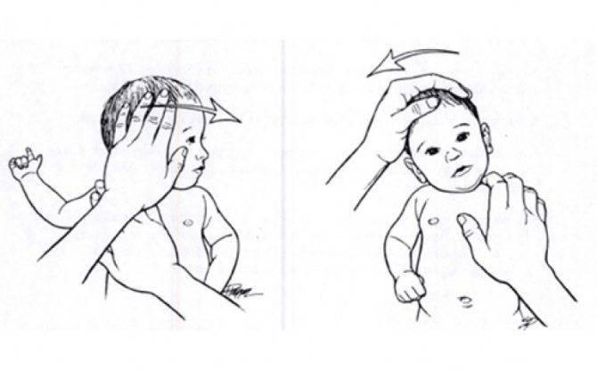 Принципы, приемы и техника массажа при кривошее