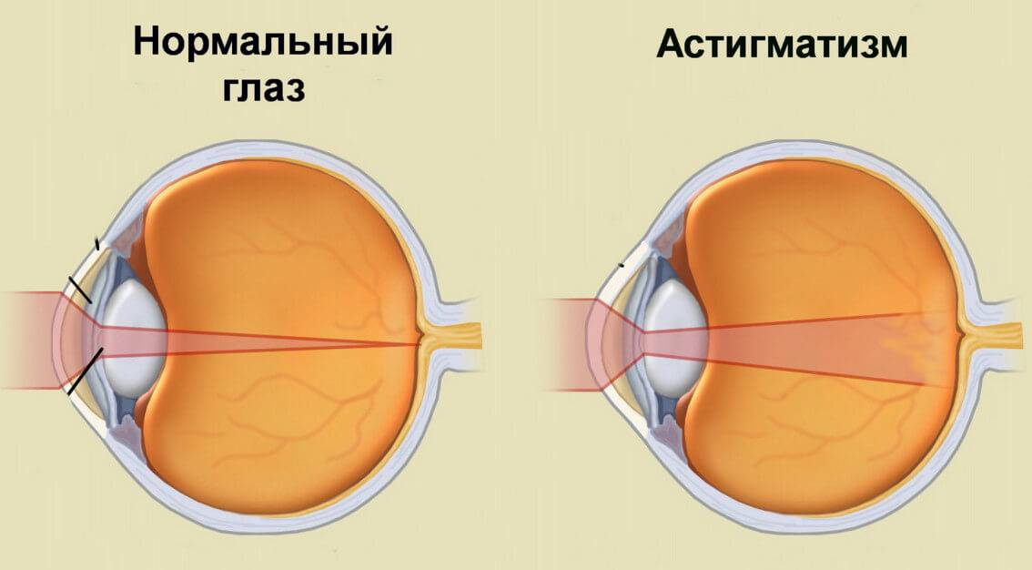 Смешанный астигматизм обоих глаз, лечение и коррекция смешанного астигматизма в клинике fedorovmedcenter.ru