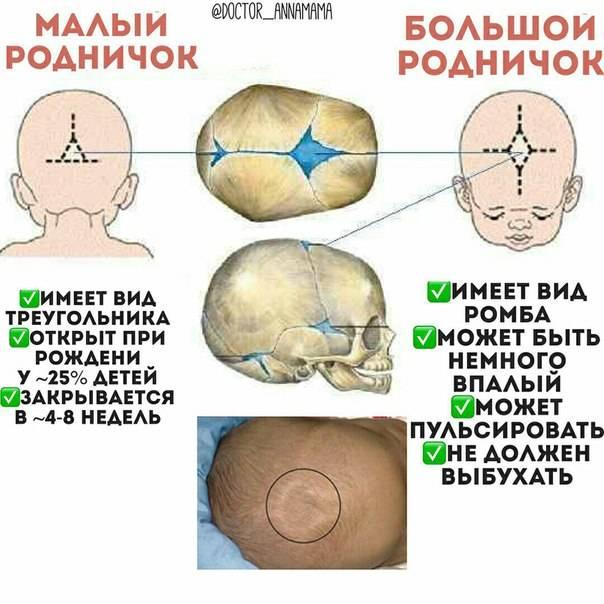 Родничок у грудничка: пульсирующий, причины и последствия