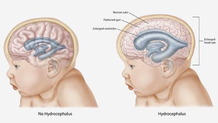 Врожденная гидроцефалия – порок развития у собак