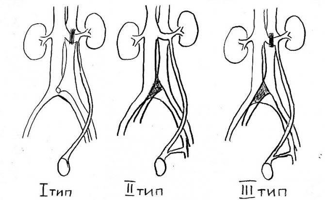 Варикоцеле: обратимая причина бесплодия - причины, диагностика и лечение