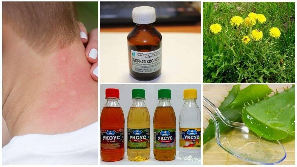 Кожный зуд - причины и лечение, антигистаминные препараты