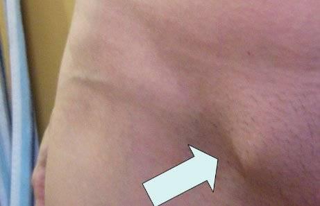 Паховая грыжа, лечение паховой грыжи, как лечить паховую грыжу