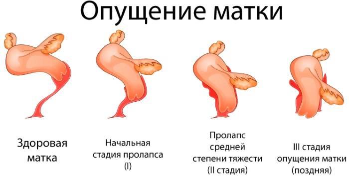 Пролапс тазовых органов у женщин