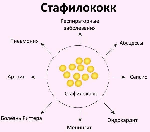 Посев на золотистый стафилококк (s. aureus) с определением чувствительности к антибиотикам, количественно: исследования в лаборатории kdlmed