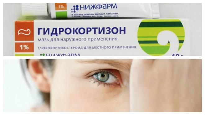 Народные методы лечения конъюнктивита у детей