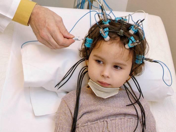Ээг головного мозга детям