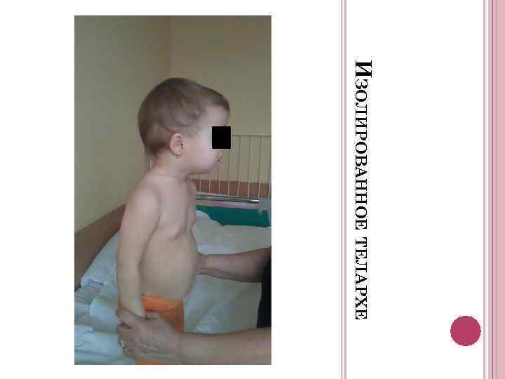 Изолированное телархе: причины, диагностика и лечение