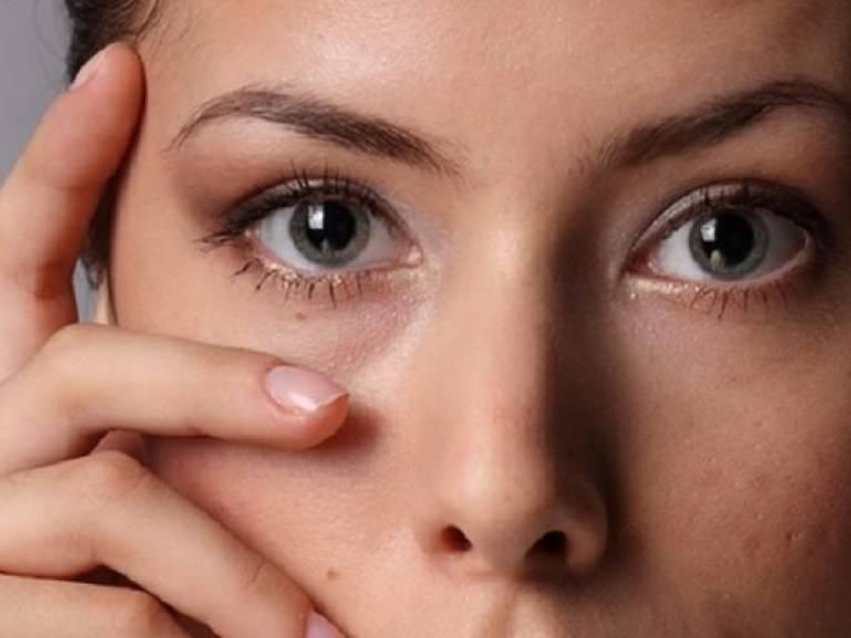 Почему вокруг глаз появляются темные круги и как это лечится?
