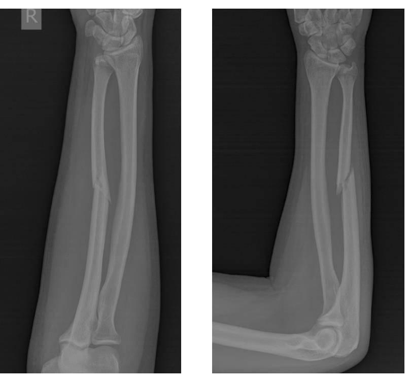 Травма локтя, остеосинтез локтевого сустава