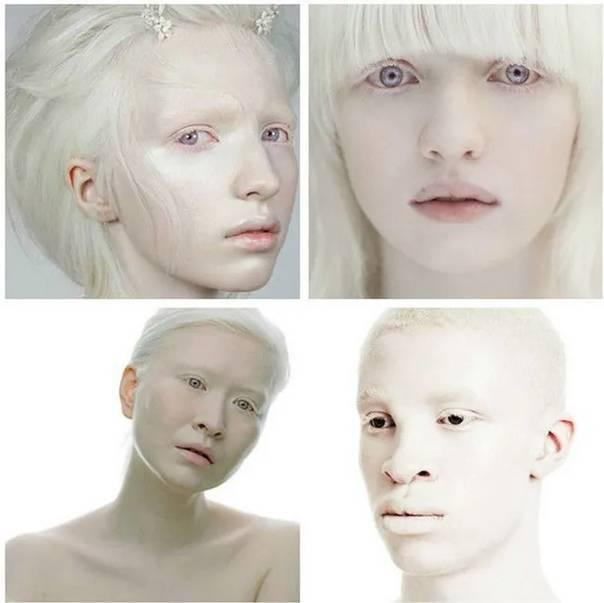 Альбинизм — википедия. что такое альбинизм