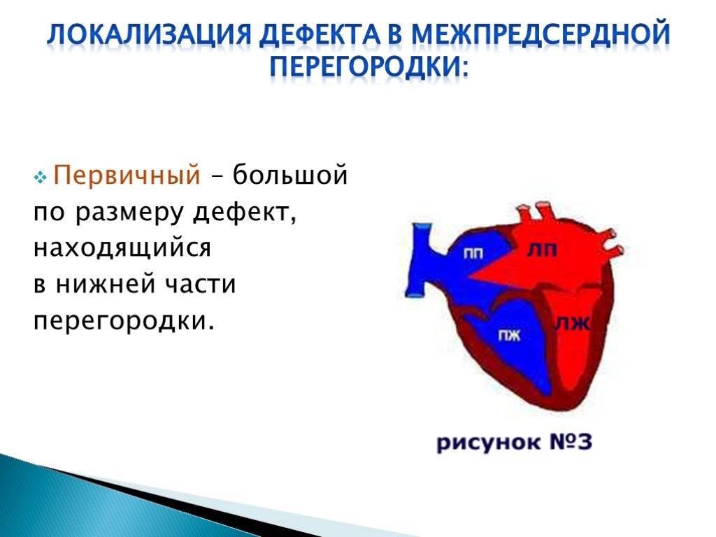 Врожденные пороки сердца: виды и методы диагностики