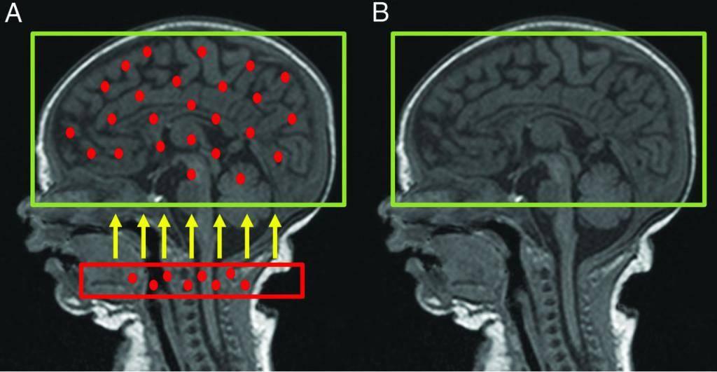Ишемия сосудов  головного мозга: симптомы, лечение | последствия хронической ишемии головного мозга.