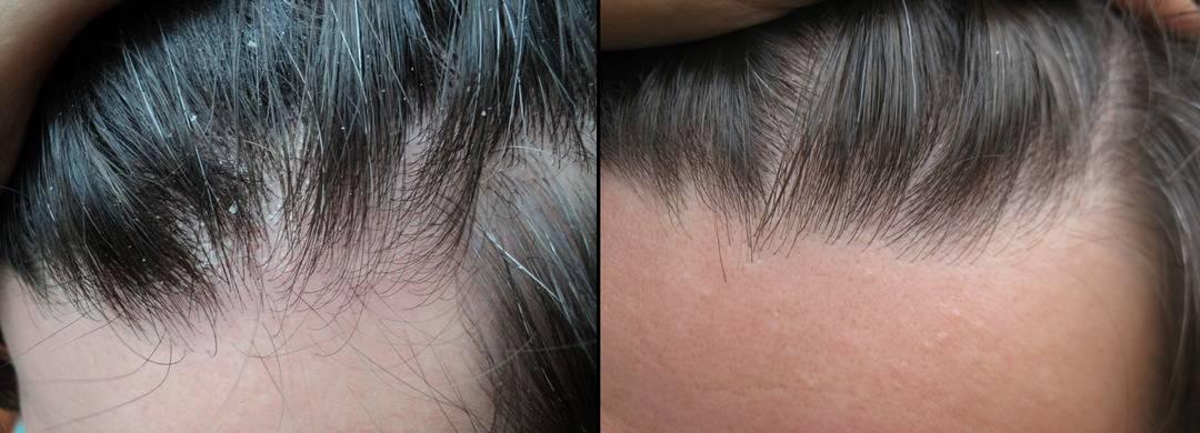 Сухость кожи головы у ребенка: симптомы и лечение