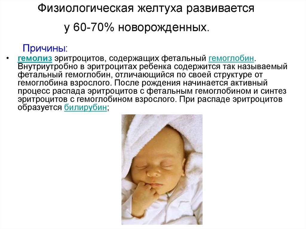 Симптомы и лечение желтухи у детей